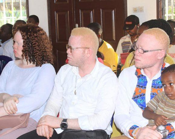 Quelques albinos à la cérémonie de lancement du fonds